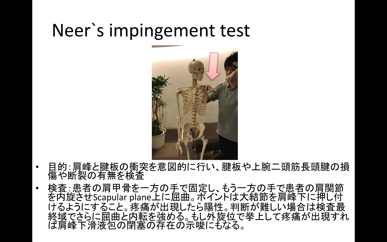 整形外科テストまとめ(上肢編)!保存版!検査方法と注意点と理学療法士のアドバイス付き!